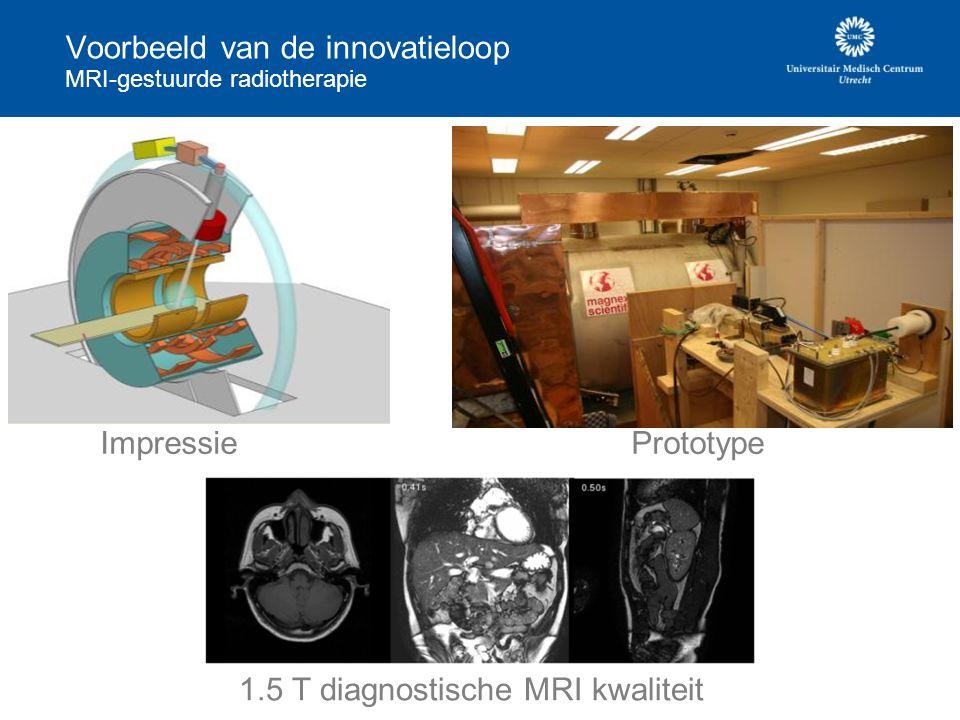 Voorbeeld van de innovatieloop MRI-gestuurde radiotherapie