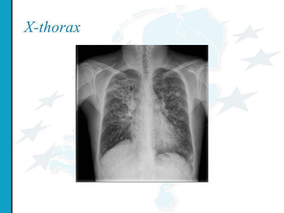 X-thorax