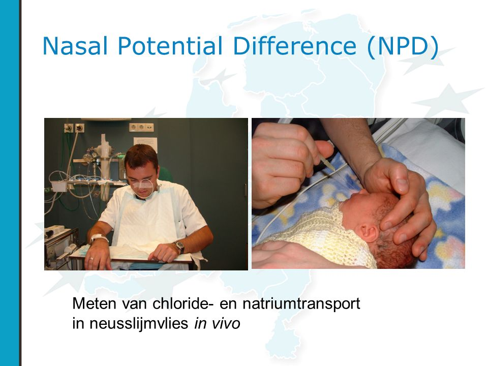 Nasal Potential Difference (NPD)