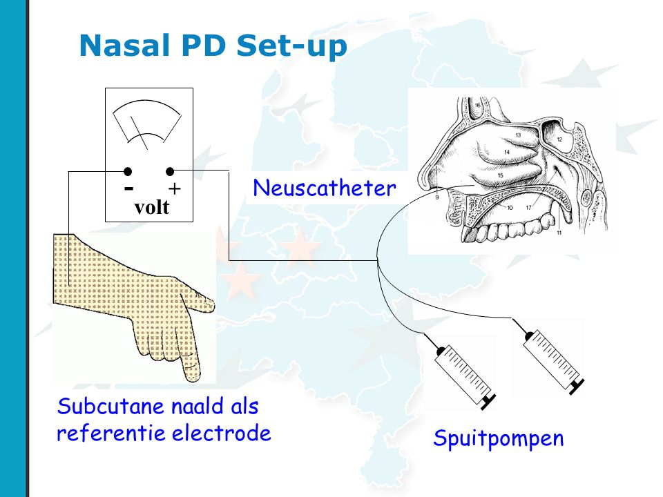 Nasal PD Set-up - + Neuscatheter volt