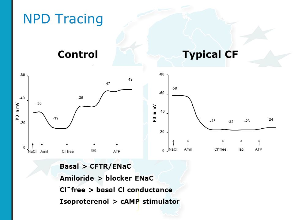 NPD Tracing Control Typical CF Basal > CFTR/ENaC