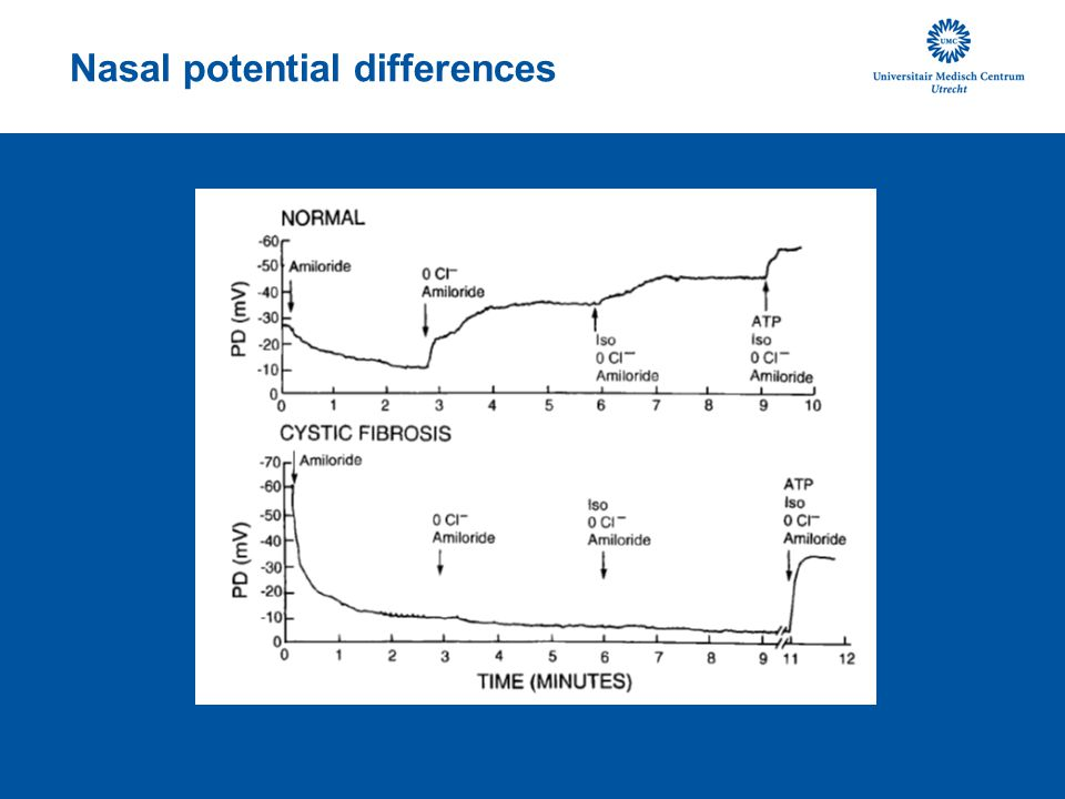 Nasal potential differences