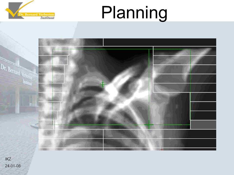 Planning Zo ziet het bestralingsveld er dan uit IKZ 24-01-08