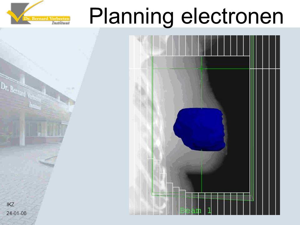 Planning electronen Nu wil de arts bijvoorbeeld het ingetekende deel een boost bestraling geven met elektronen.