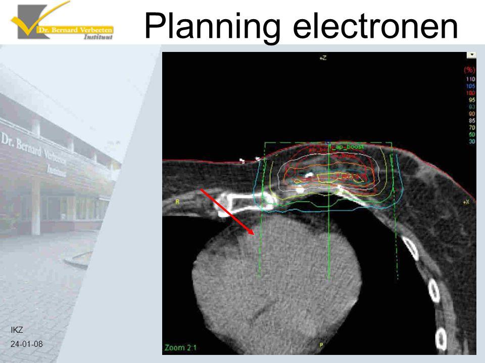 Planning electronen Hier zie je dat het veld (de groene lijntjes aangegeven met rode pijl) direct op het lichaam staat gericht.