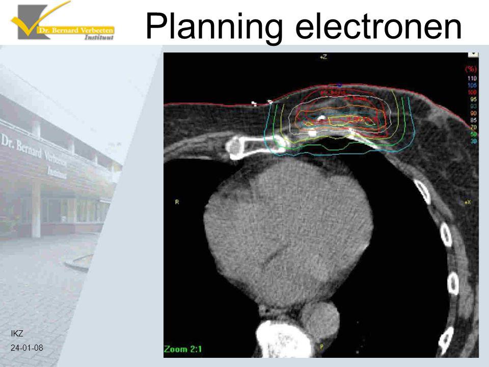 Planning electronen Krijgen we deze isodose lijnen erbij IKZ 24-01-08