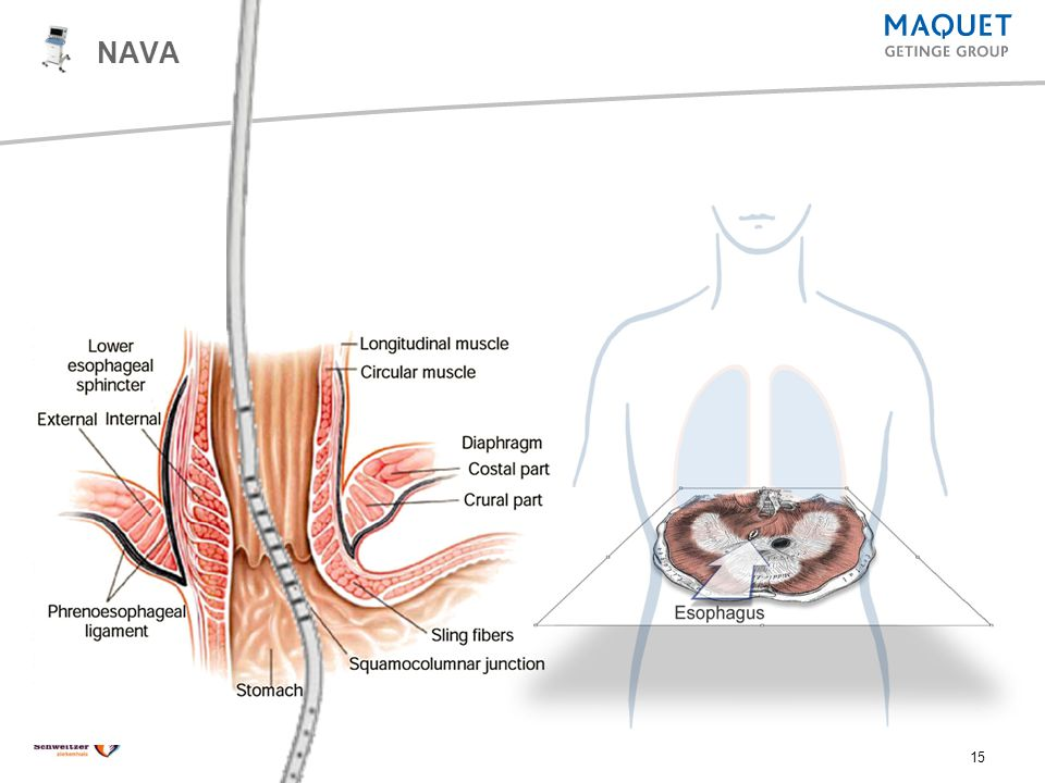 NAVA Esophagus NAVA Training Presentation 2007