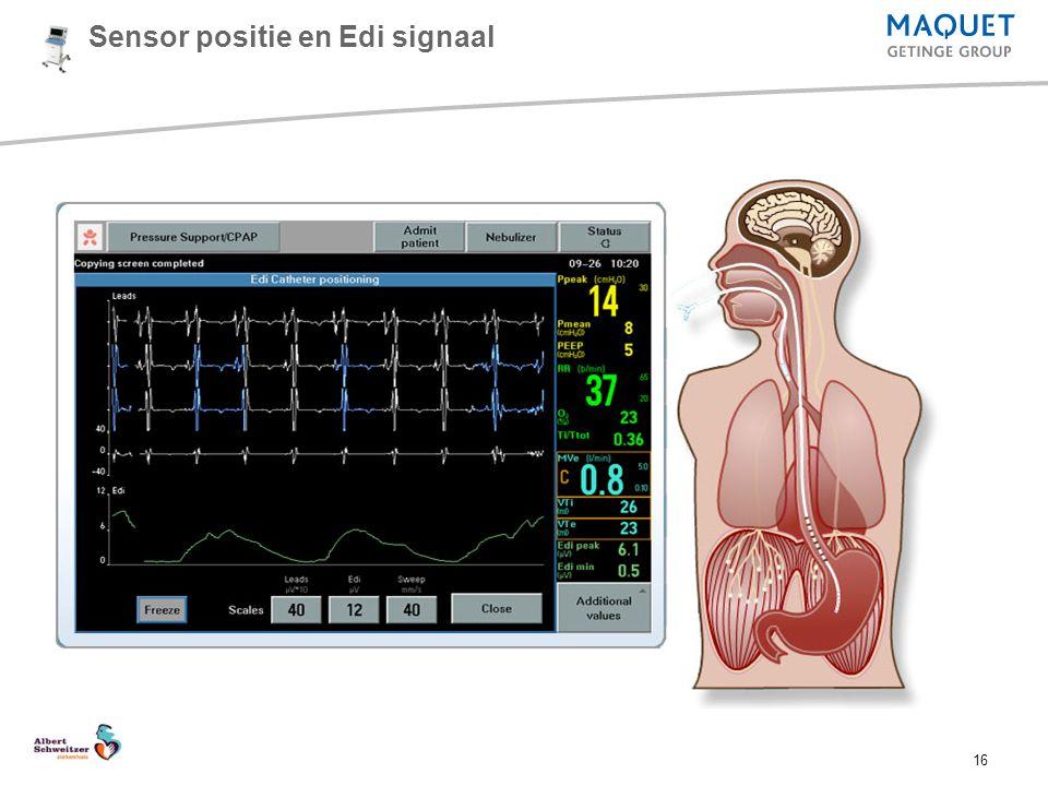 Sensor positie en Edi signaal