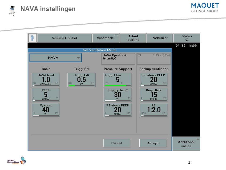 NAVA instellingen SERVO-i version 5.0 updates