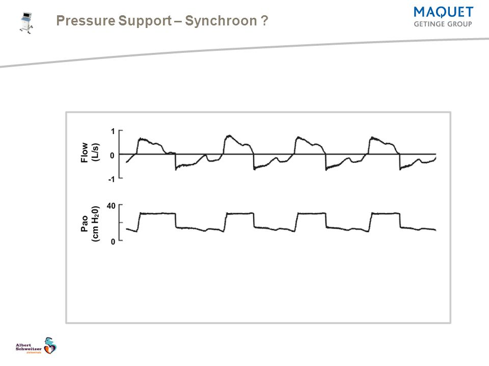 Pressure Support – Synchroon