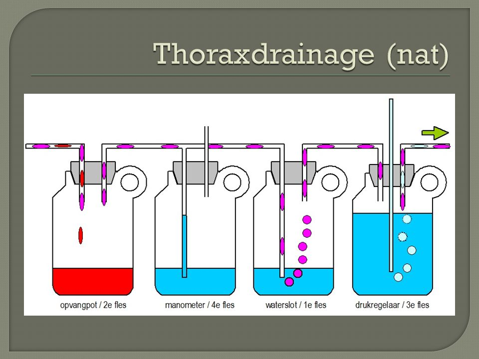Thoraxdrainage (nat)