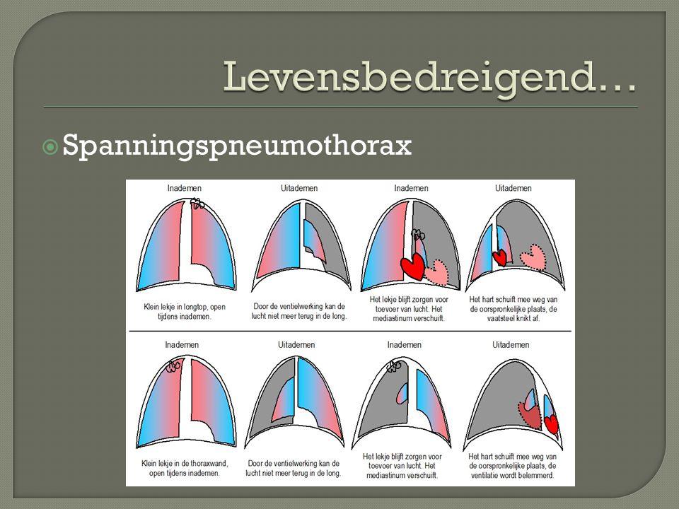 Levensbedreigend… Spanningspneumothorax