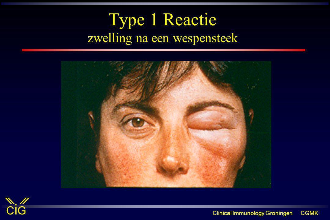 Type 1 Reactie zwelling na een wespensteek