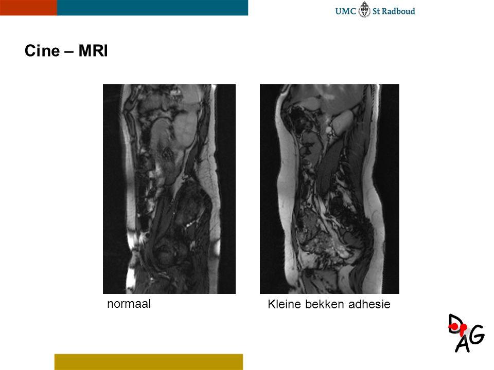Cine – MRI normaal Kleine bekken adhesie