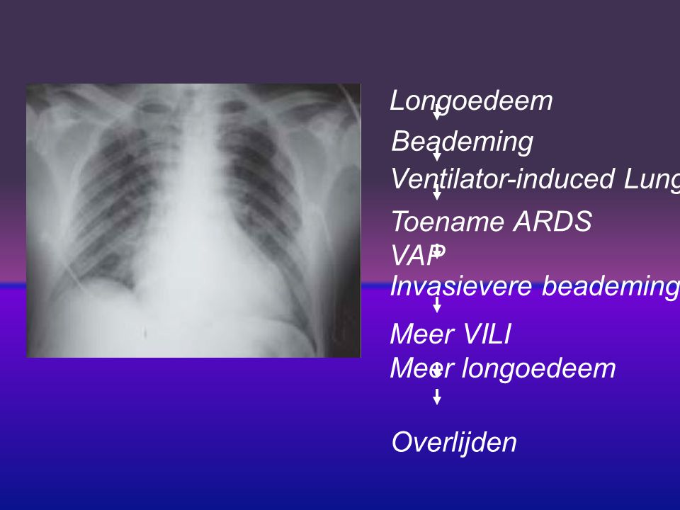 Longoedeem Beademing. Ventilator-induced Lung Injury (VILI) Toename ARDS. VAP. Invasievere beademing.