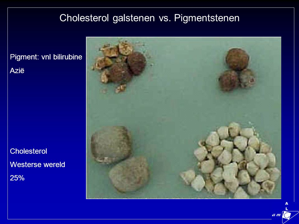 Cholesterol galstenen vs. Pigmentstenen