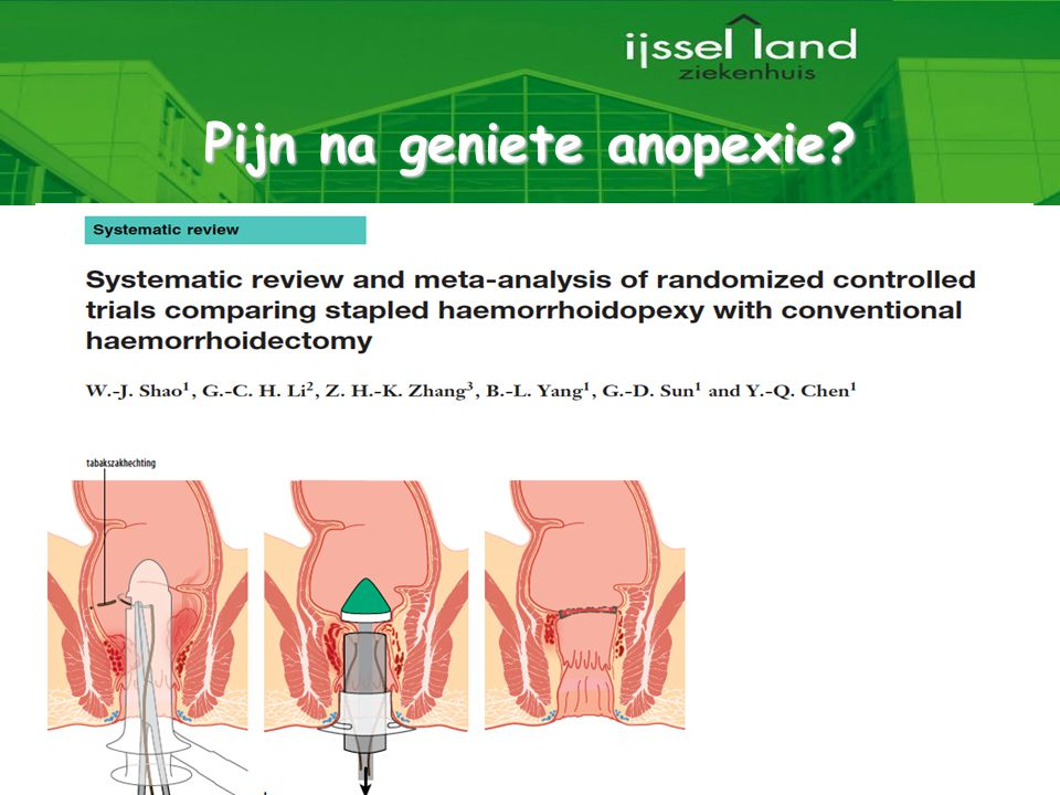 Pijn na geniete anopexie