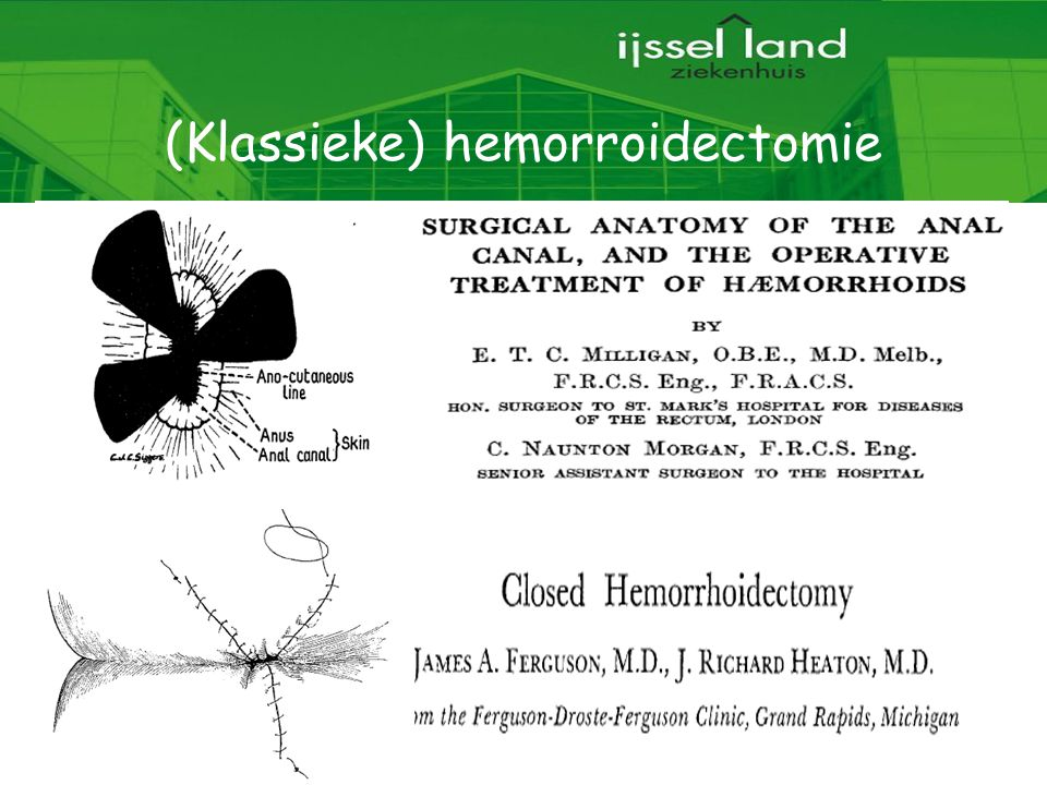 (Klassieke) hemorroidectomie