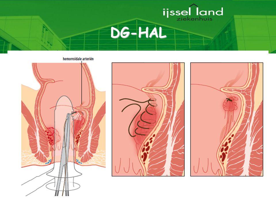 DG-HAL 6