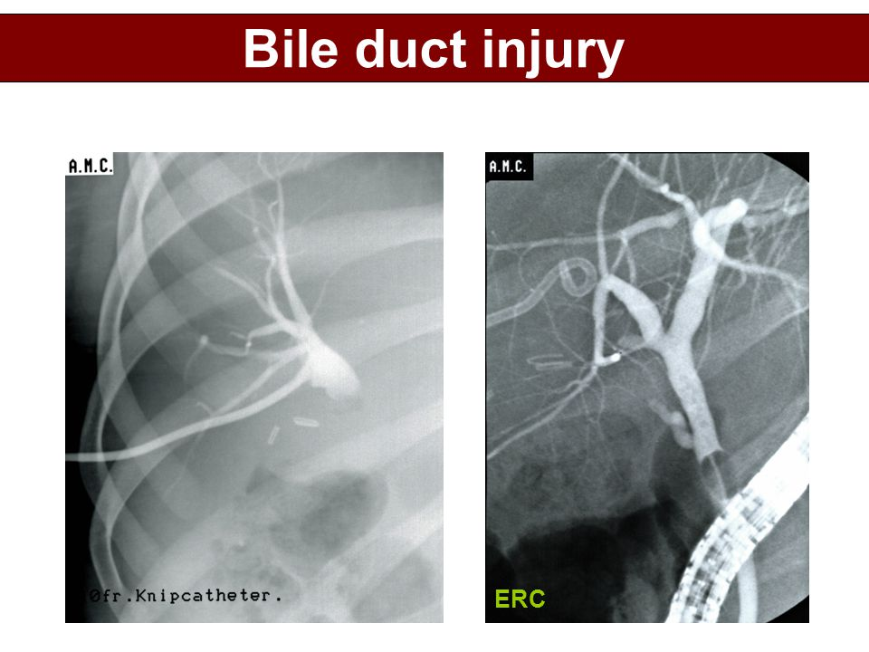 Bile duct injury ERC