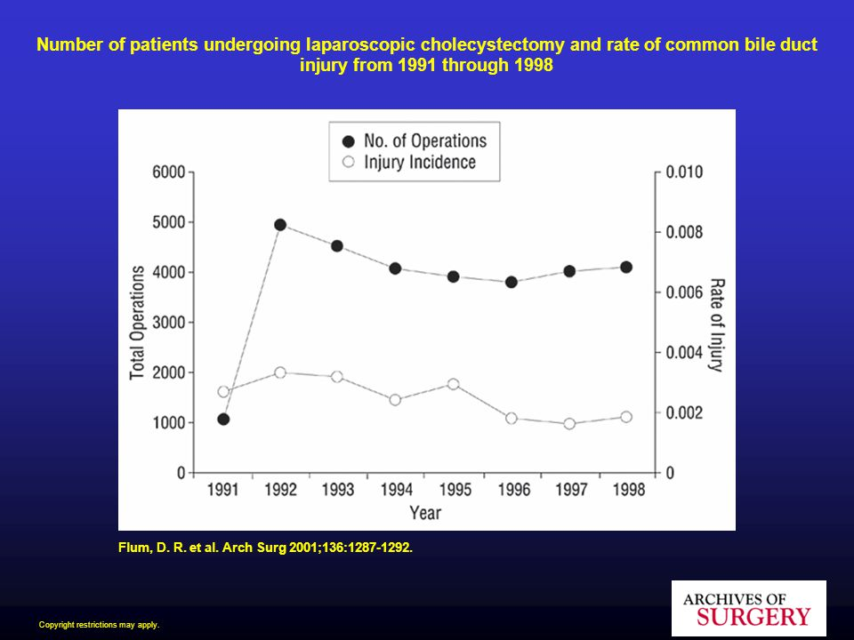 Number of patients undergoing laparoscopic cholecystectomy and rate of common bile duct injury from 1991 through 1998