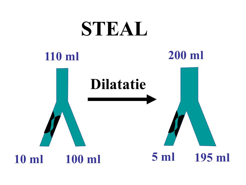 STEAL 110 ml 200 ml Dilatatie 5 ml 195 ml 10 ml 100 ml