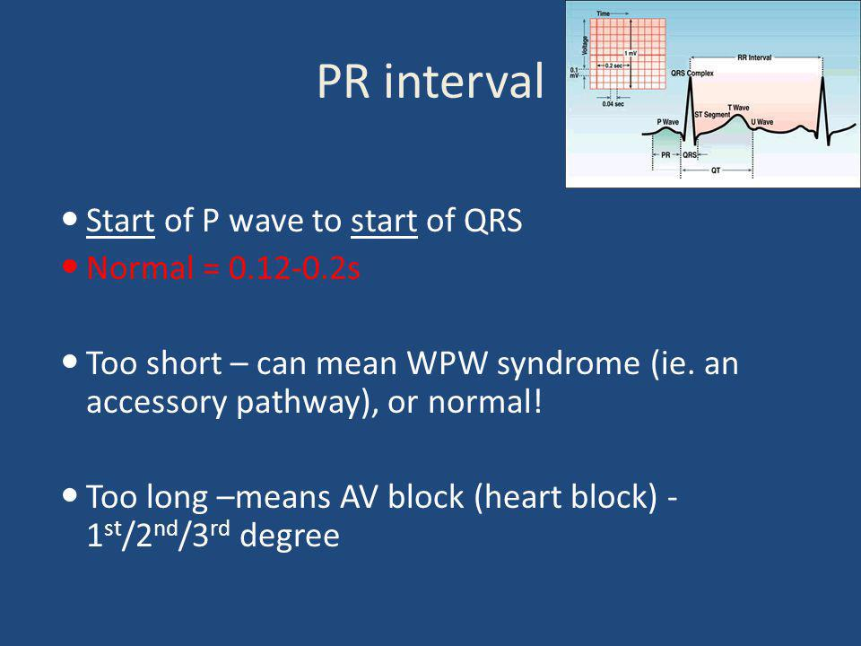 PR interval Start of P wave to start of QRS Normal = 0.12-0.2s