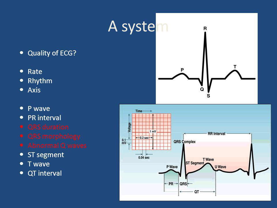 A system Quality of ECG Rate Rhythm Axis P wave PR interval