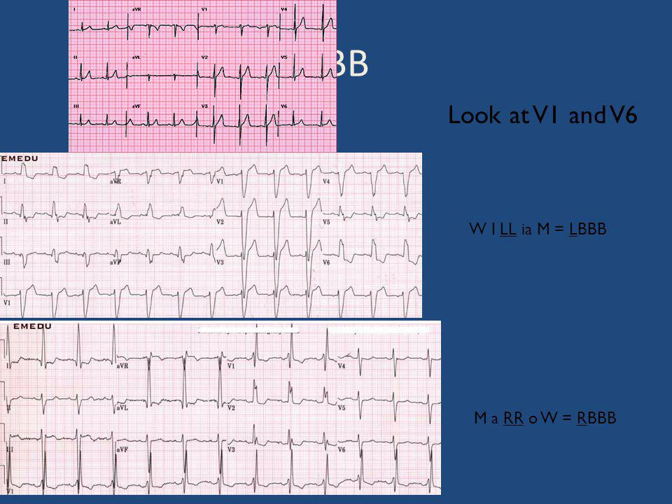 BBB Look at V1 and V6 W I LL ia M = LBBB M a RR o W = RBBB