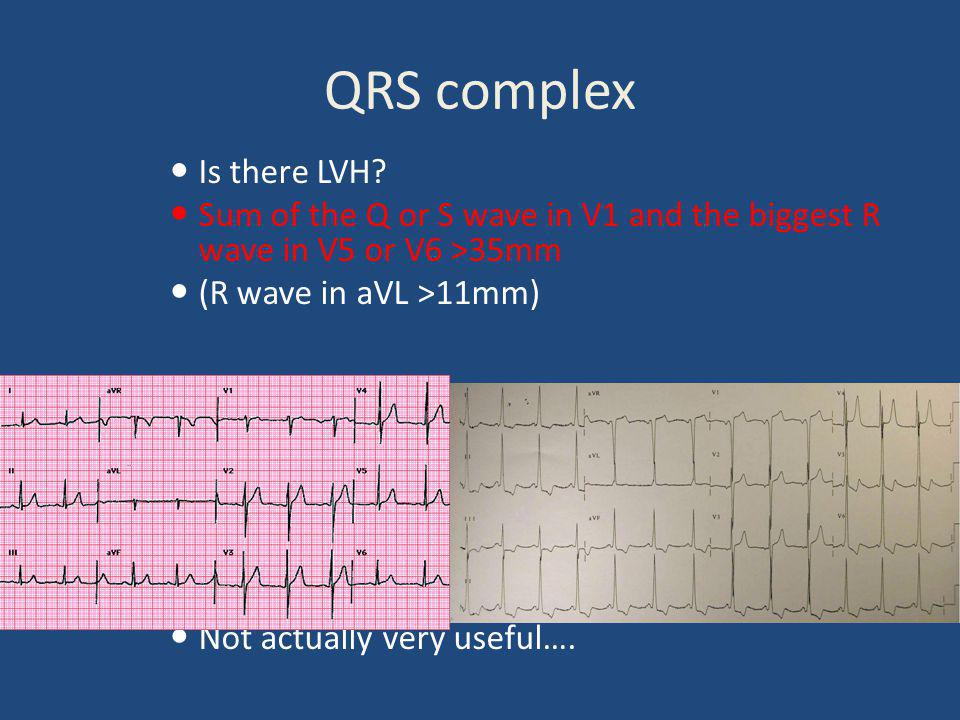 QRS complex Is there LVH