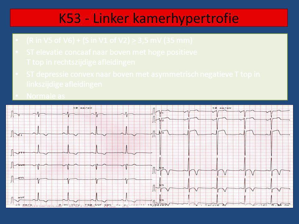 K53 - Linker kamerhypertrofie