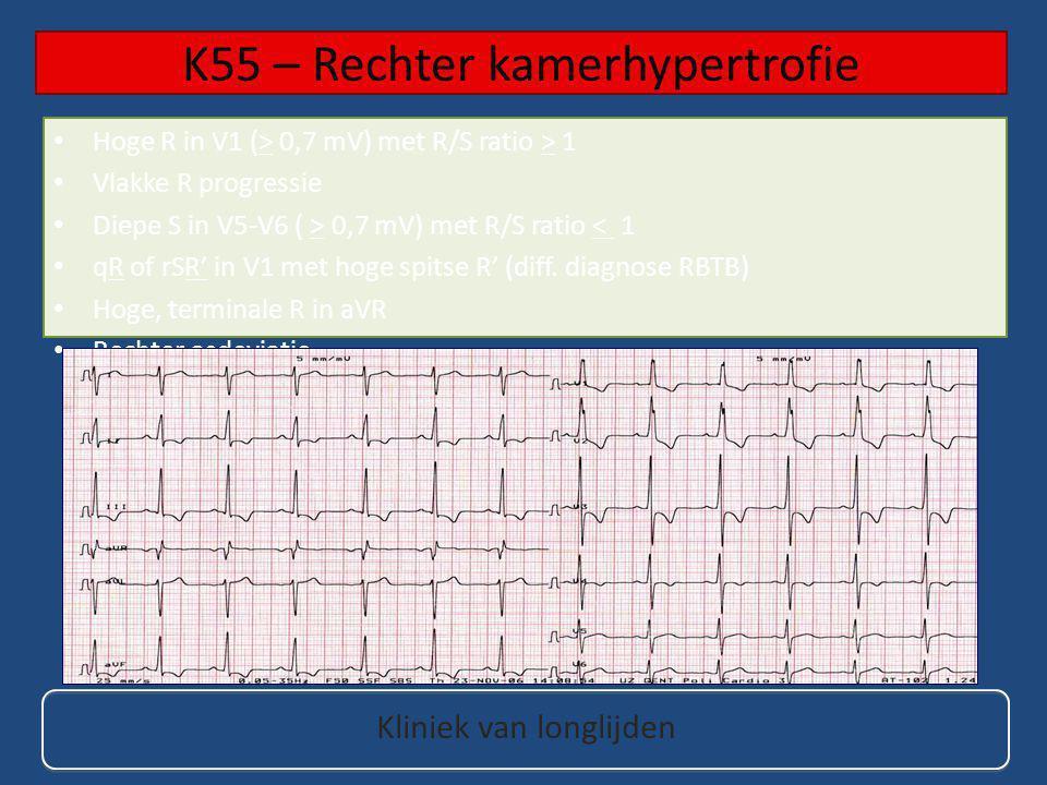 K55 – Rechter kamerhypertrofie