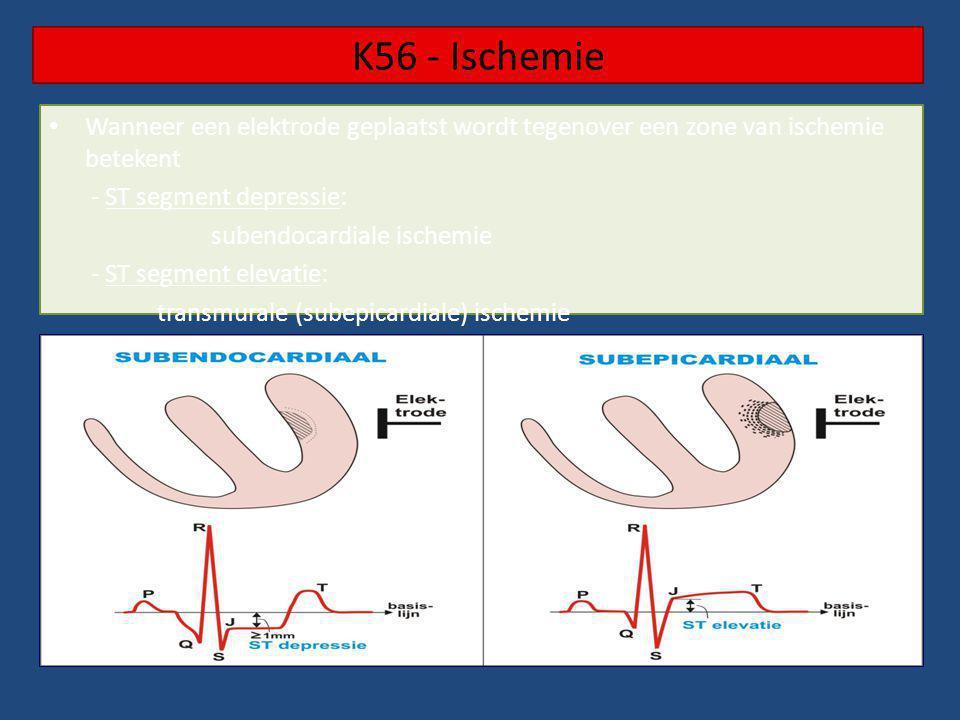 K56 - Ischemie Wanneer een elektrode geplaatst wordt tegenover een zone van ischemie betekent. - ST segment depressie: