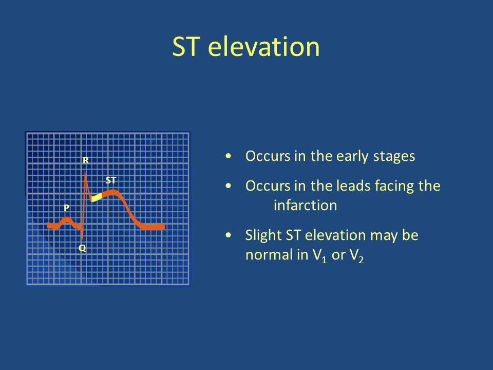 ST elevation Occurs in the early stages