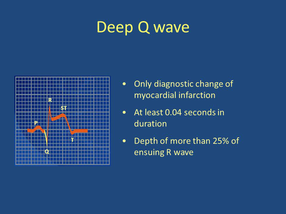 Deep Q wave Only diagnostic change of myocardial infarction