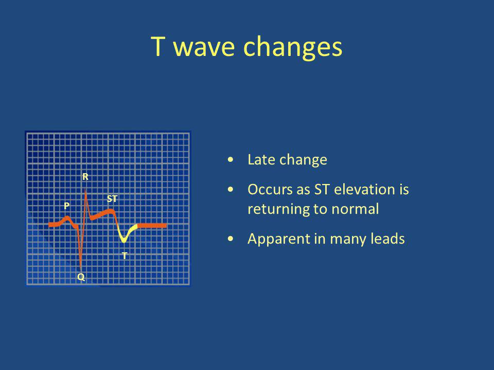 T wave changes Late change