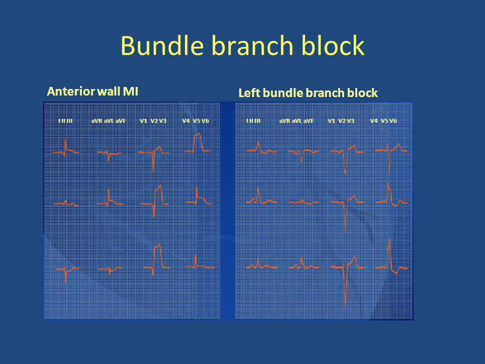 Bundle branch block Anterior wall MI Left bundle branch block I II III