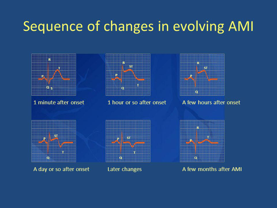 Sequence of changes in evolving AMI