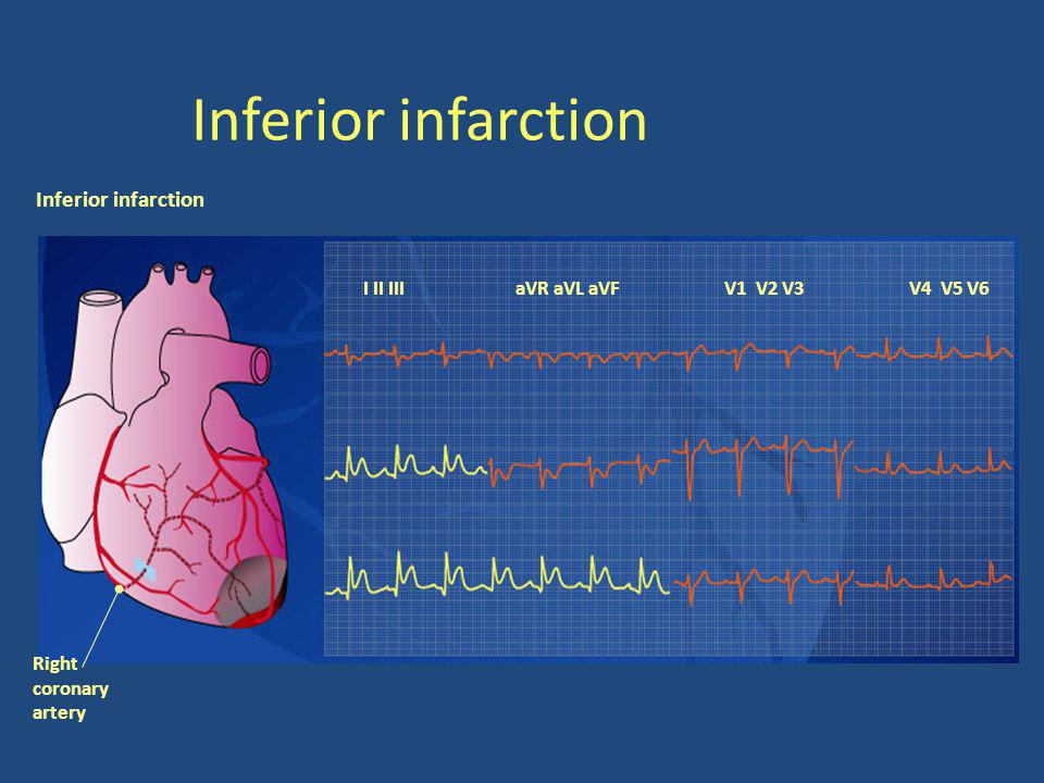 Inferior infarction Inferior infarction I II III aVR aVL aVF V1 V2 V3