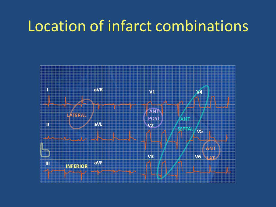 Location of infarct combinations