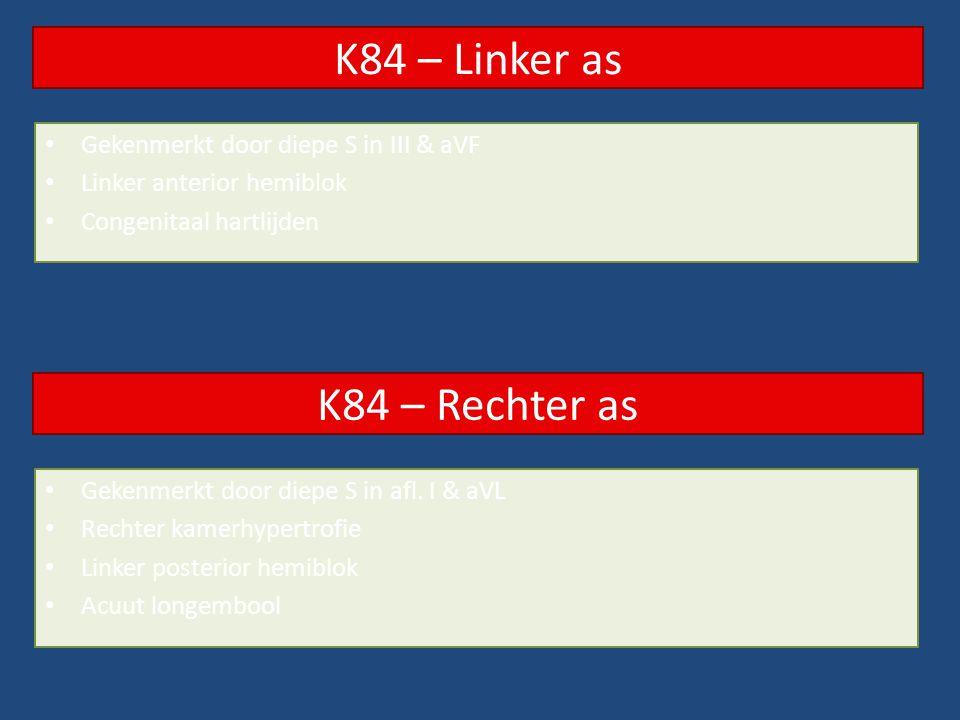 K84 – Linker as K84 – Rechter as Gekenmerkt door diepe S in III & aVF