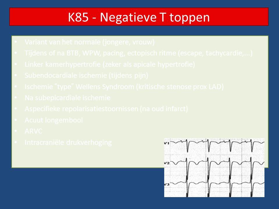 K85 - Negatieve T toppen Variant van het normale (jongere, vrouw)
