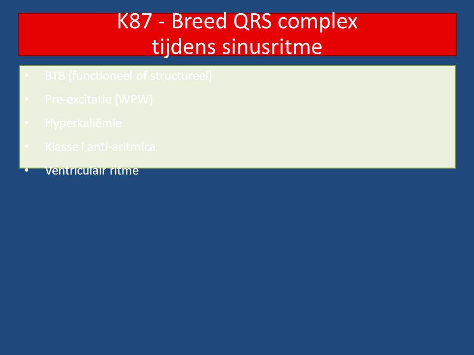 K87 - Breed QRS complex tijdens sinusritme