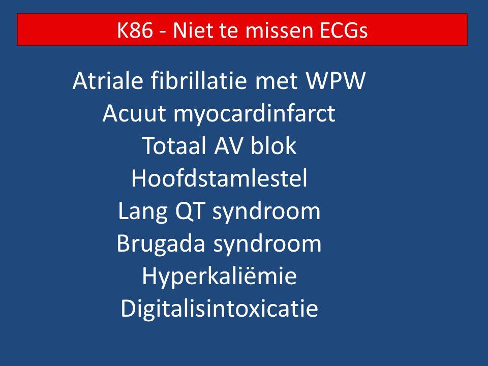 K86 - Niet te missen ECGs