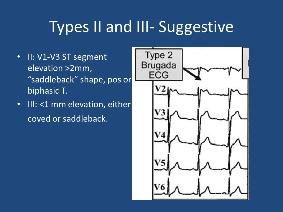 Types II and III- Suggestive