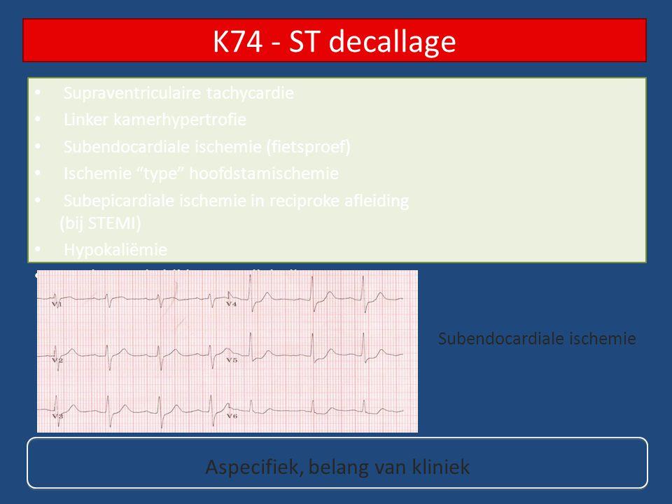 K74 - ST decallage Aspecifiek, belang van kliniek