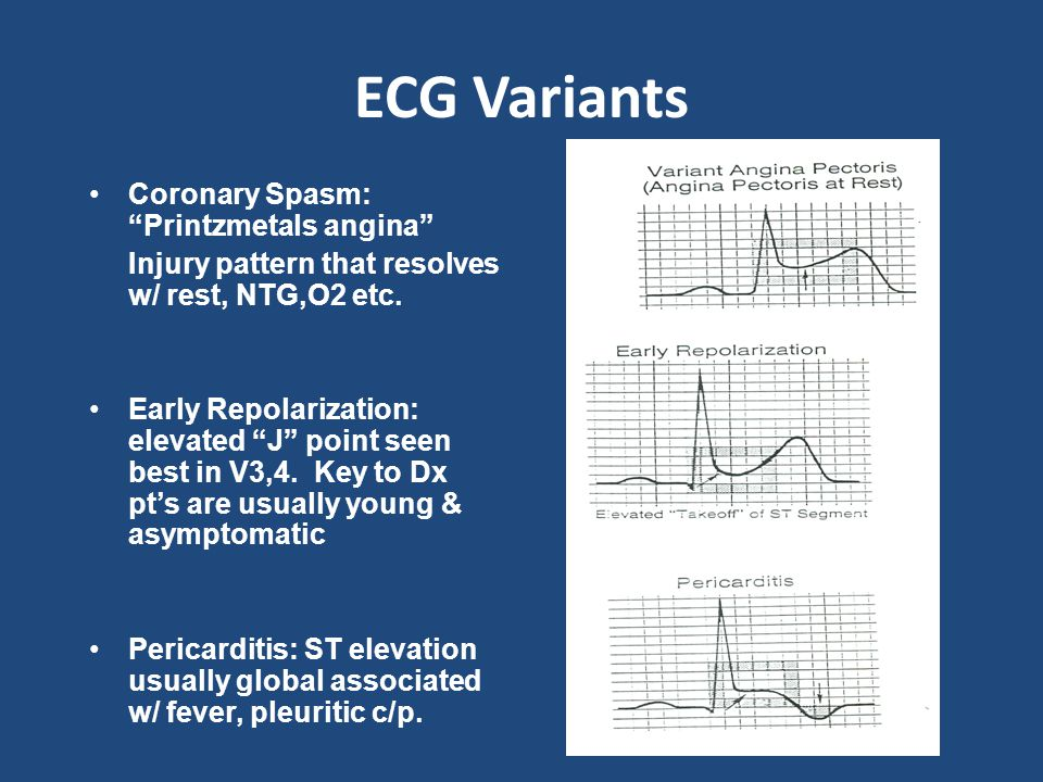 ECG Variants Coronary Spasm: Printzmetals angina