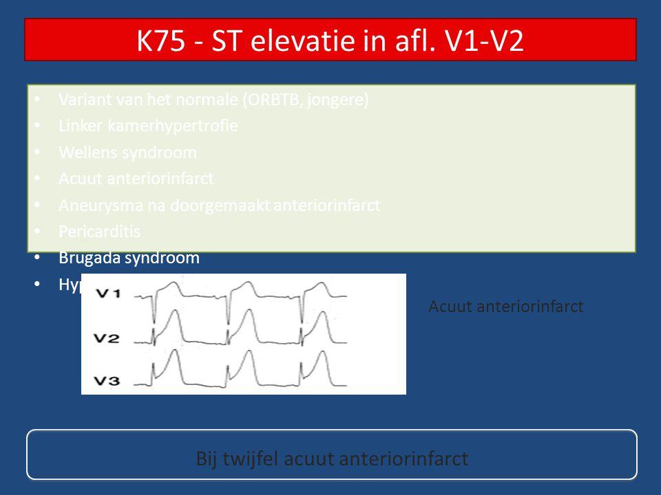 K75 - ST elevatie in afl. V1-V2
