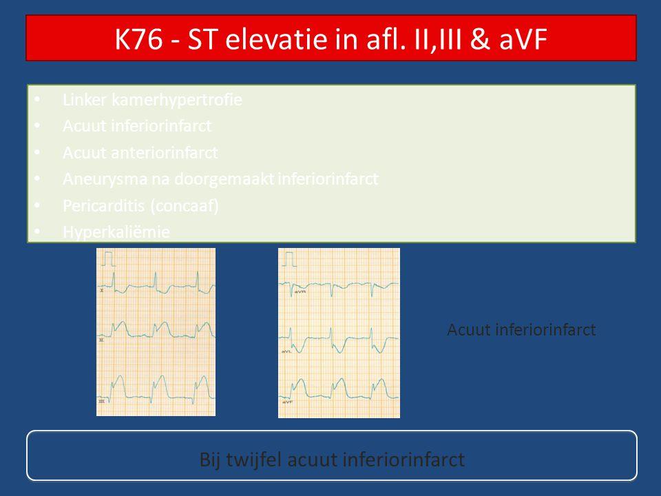 K76 - ST elevatie in afl. II,III & aVF