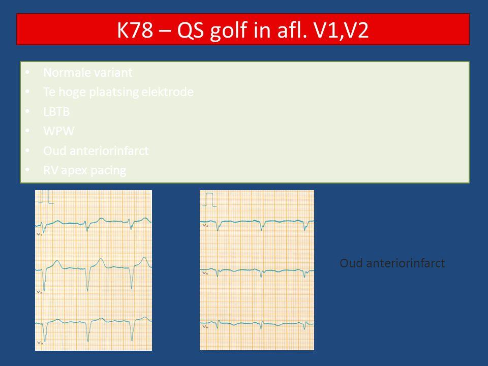 K78 – QS golf in afl. V1,V2 Normale variant